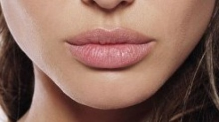 dermal filler lips