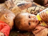 pakistan-children-disease