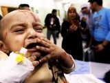 gaza-palestine-child-injured-israel-afp