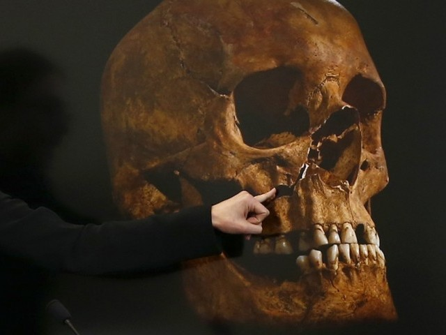 Project Osteologist Jo Appleby points out damage to a skull, believed to be that of Richard III, during a news conference in Leicester, central England February 4, 2013. PHOTO: REUTERS