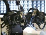 robot-arms-surgery-reuters-2