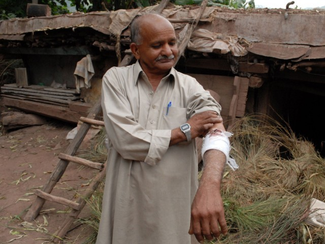 A Pakistani Kashmiri shows his wounded arm from firing across the Line of Control (LoC) between Pakistan and India in Durra Shair Khana on October 7, 2014. PHOTO: AFP
