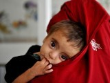 malnutrition-in-afghanist-008-2