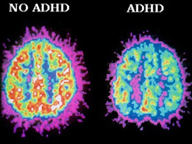 A Pet Scan ullustrating difference between a brain with ADHD and one without