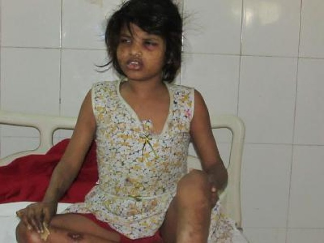 The 10-year-old girl was naked, emaciated and acted like an animal when she was discovered by woodcutters. PHOTO COURTESY: TIMES OF INDIA