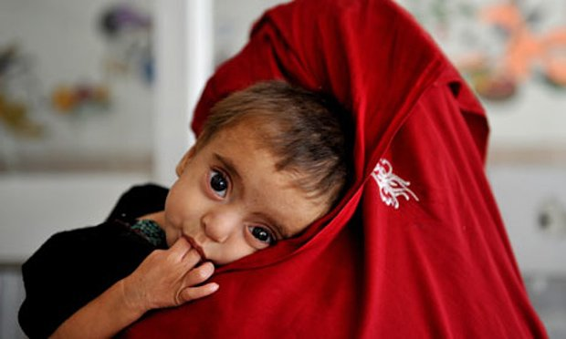 malnutrition-in-afghanist-008-2-2-2-2