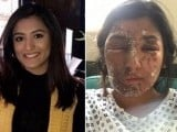 Aspiring model Resham Khan and her cousin were attacked in London. They both had acid thrown over them by an unknown assailant.  PHOTO: Go-Fund-Me (VIA The Independent)