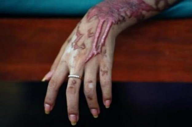 widow daughter attacked with acid in kurram