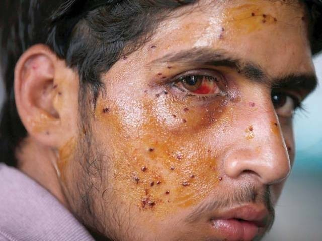 A Kashmiri youth with eye injuries inflicted by pellets fired by Indian forces. PHOTO: AFP
