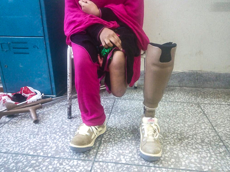 A female victim of a landmine blast. PHOTO: EXPRESS