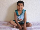 eduardo-baltazar-13-poses-for-a-photo-he-is-the-youngest-person-to-undergo-a-kidney-transplant-in-his-village-agua-caliente-mexico-july-8-2017-thomson-reuters-foundationstephen-woodman