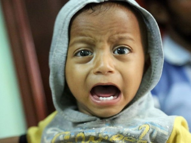 A Yemeni child suspected of being infected with cholera cries at a hospital in the coastal city of Hodeida. PHOTO: AFP