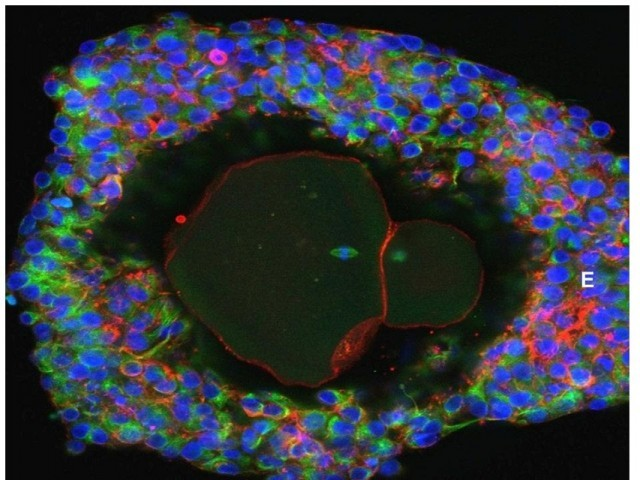 An undated picture shows a magnification of a lab-grown fully matured human egg ready for fertilization. PHOTO: REUTERS