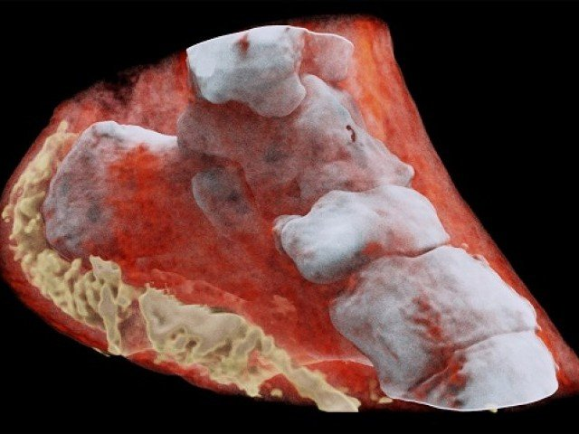 New X-ray technology produces striking 3D images in full color