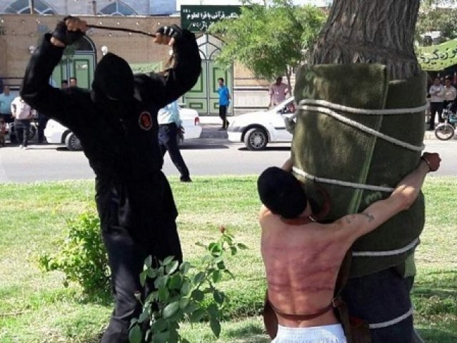 Iranian authorities conducted various forms of cruel punishments in 2018, including amputating a man's hand for theft. PHOTO COURTESY: THE SUN
