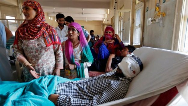 A man injured by a pellet gun lies in a Kashmir hospital. PHOTO: REUTERS