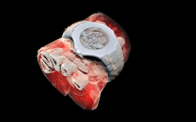 3-D, colour X-ray on a human, using a technique promising to improve the field of medical diagnostics, announced Europe's CERN physics lab. PHOTO: AFP