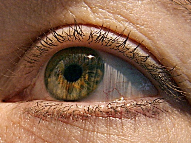 Non-invasive eye test may offer early Alzheimer's diagnosis