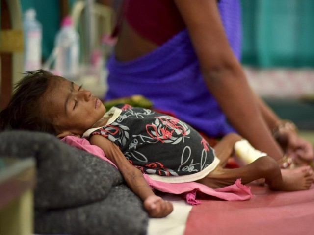 Representational image of a malnutrition-ed child. PHOTO: REUTERS