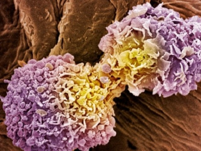 Scientists Develop 'Universal Cancer Test' That Could Provide Results In 10 Minutes
