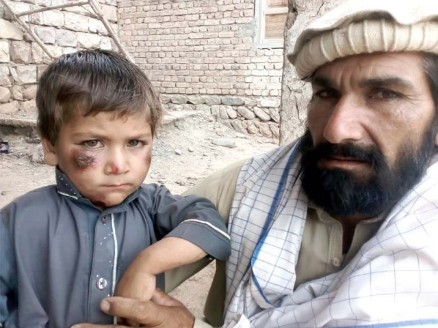 A child suffering from leishmaniasis in Shewa town of North Waziristan. PHOTO: EXPRESS