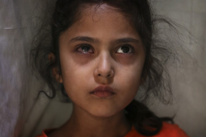 Six-year-old Muneefa Nazir, a Kashmiri girl whose right eye was hit by a marble ball shot allegedly by Indian Paramilitary soldiers on Aug. 12, stands outside her home in Srinagar, Indian controlled Kashmir, Sept. 17, 2019. (Mukhtar Khan)